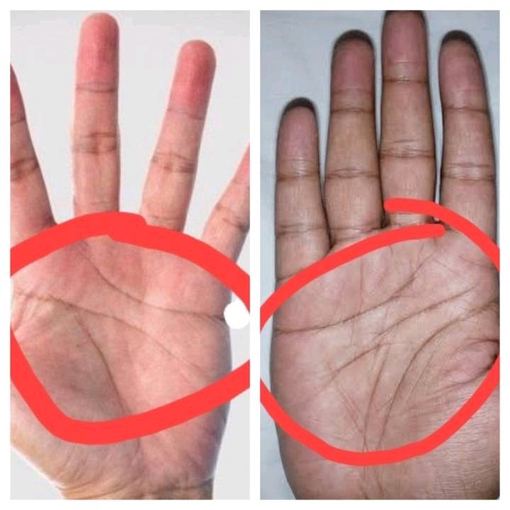 operanews1629203778992 1 - If you have 3 lines on your Palm instead of 4, here is what it means